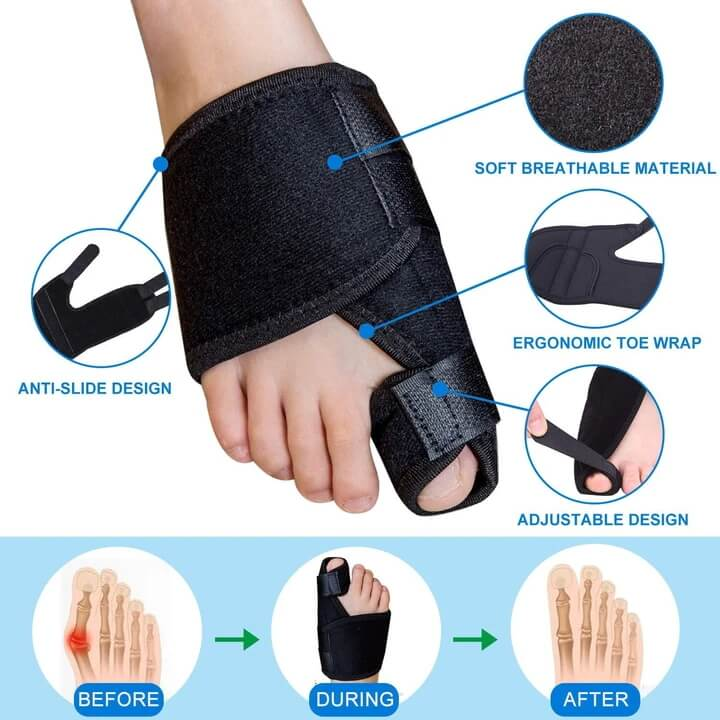 Features of the Corrective Bunion Splint