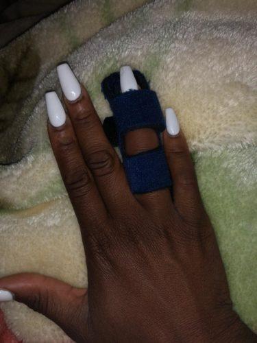 Professional Finger Splint photo review